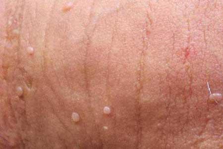 Bao quy đầu bị viêm nhiễm nặng