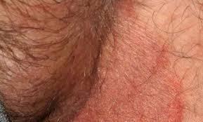 Bệnh ngoài da tại khu vực vùng kín…