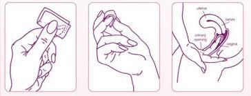 Cách sử dụng màng phim tránh thai