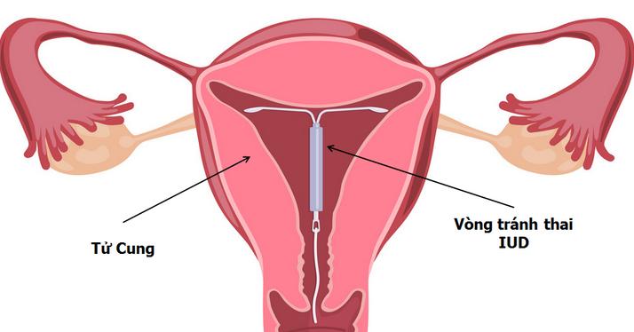 Dây vòng tránh thai thò ra ngoài