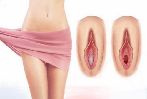 Thủ thuật vá màng trinh là gì