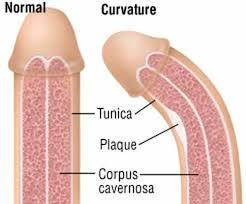 Triệu chứng biểu hiện của bệnh dương vật cong là như thế nào?