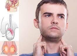 Phác đồ điều trị quai bị viêm tinh hoàn